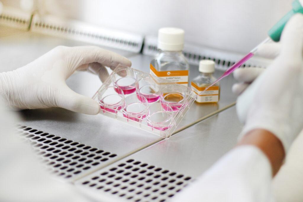 Human Platelet Lysate Sample